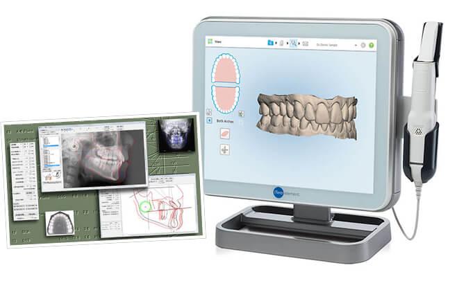 COA5矯正診断システム / i-Teroシステム